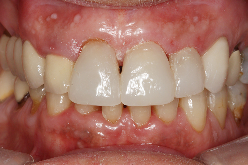 Composite Fillings1 After