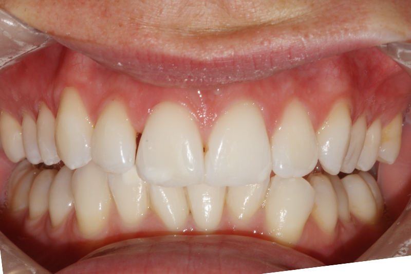 Align and Bleach1 After