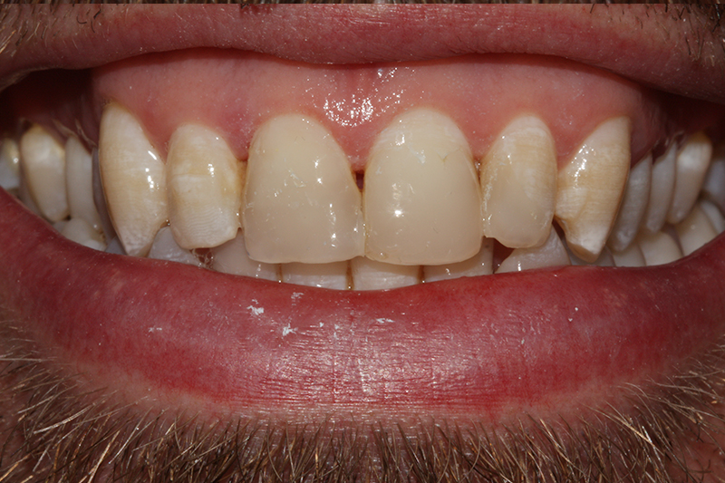 Composite Fillings2 After