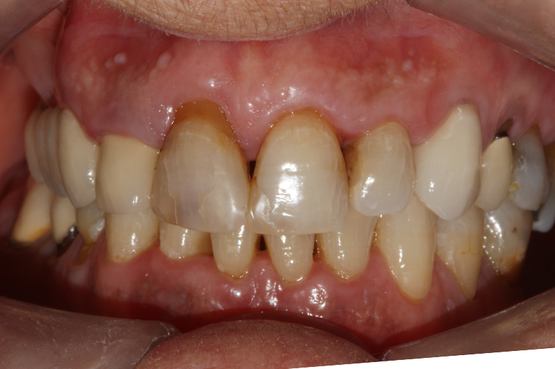 Composite Fillings1 Before