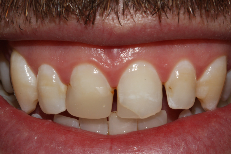 Composite Fillings2 Before