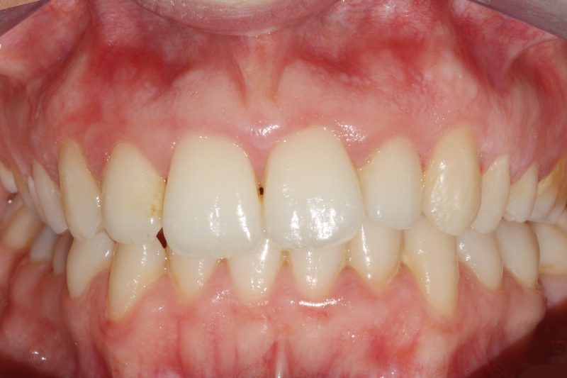 Inman Aligner1 After