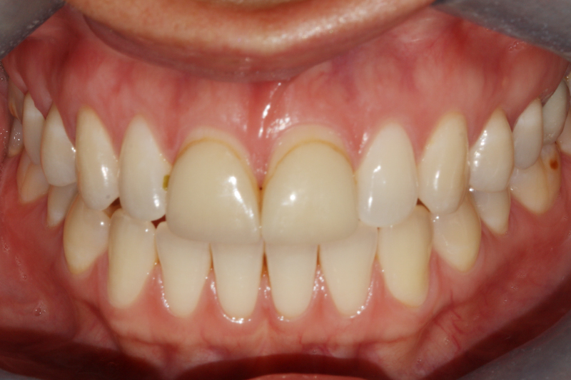 Porcelain Veneers1 Before